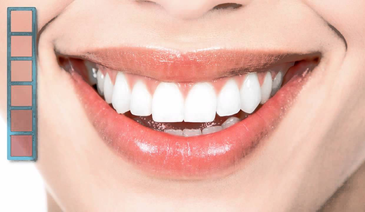 Photo of Aesthetic and Cosmetic Dentistry
