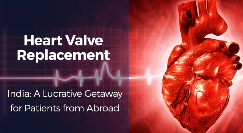 Photo of Heart Valve replacement Surgery In India