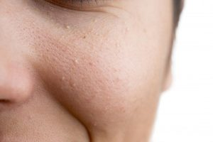 What are some effective ways to treat white spots on skin